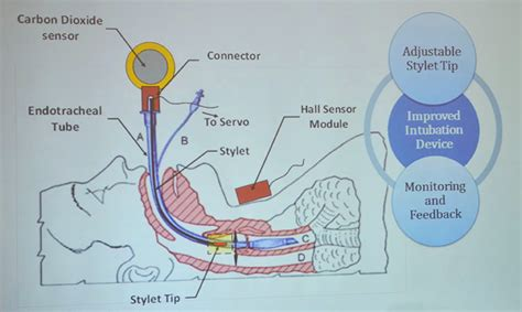 intubation diagram senior design project could be a turning point for