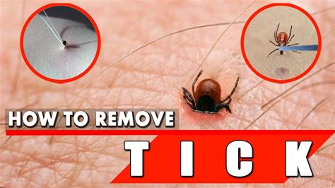 how to remove a tick safely and quickly � tick removal