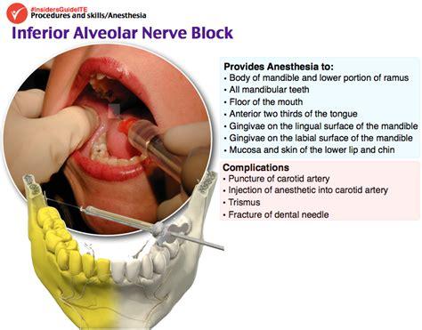 dental malpractice central malpractice and the inferior alveolar