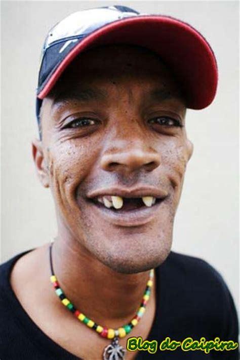 imagenes de negras sin dientes post para as meninas blog do caipira