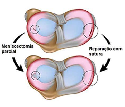 corno posteriore menisco interno dr s 233 rgio costa not 237 cias meniscos e les 245 es meniscais