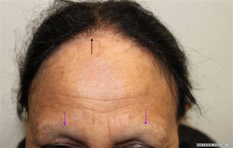 frontal fibrosing alopecia treatment frontal fibrosing alopecia treatment