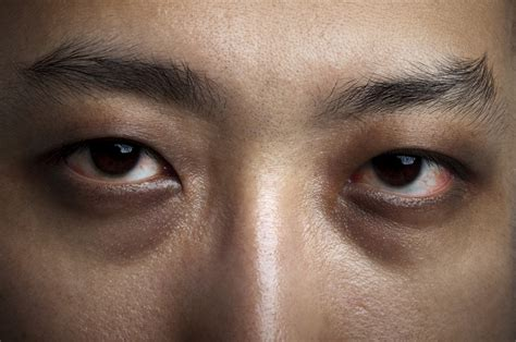 black under eye are dark circles and under eye bags caused by lack of