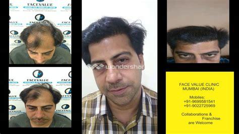 hair transplant india delhi mumbai youtube affordable fue fut hair transplant mumbai india youtube