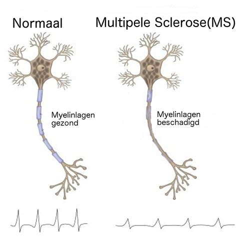 m s cbd olie en ms sclerose auxilium cbd olie