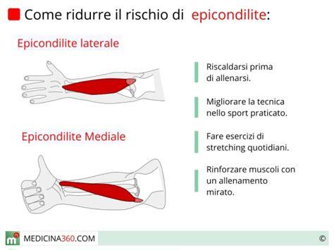 dolore interno braccio sinistro epicondilite sintomi cause e terapie per il gomito