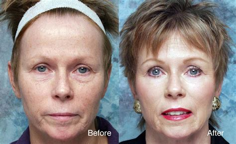 can you wear makeup after a light chemical l mugeek