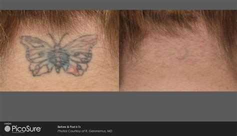 tattoo removal in greenville sc fast laser removal picosure greenville sc
