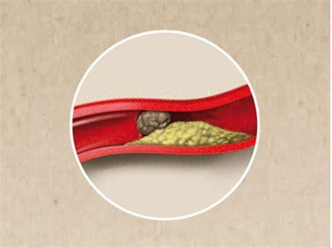 infarto quali sono i sintomi e cosa fare nanopress ictus il 73 degli under 45 sottovaluterebbe i primi