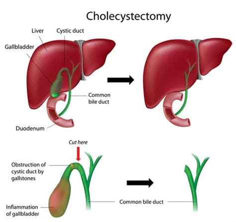 Detox Liver Gallbladder Naturally by How To Get Rid Of Gallstones Naturally