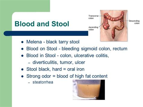 Blood In Stool Detox by 85 What Does A Tarry Stool Look Like Colon Cancer