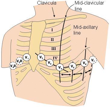 pediatric lead placement diagram ekg lead view diagram ekg get free image about wiring