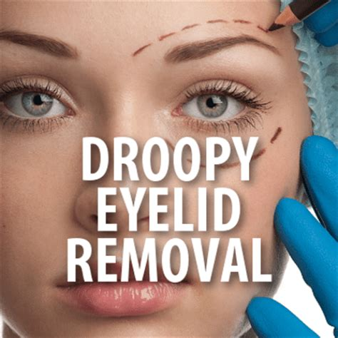 Mcgowans Droopy Eye Problem by The Drs Tv What Is Eyelid Ptosis Procedure To Correct