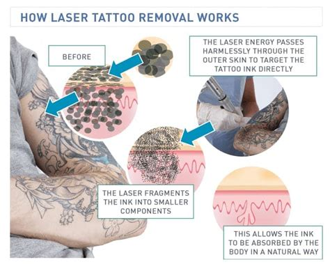 how does laser removal tattoo work the science laser removal how it works