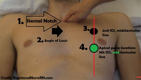 Is This Pulse apical pulse assessment and location