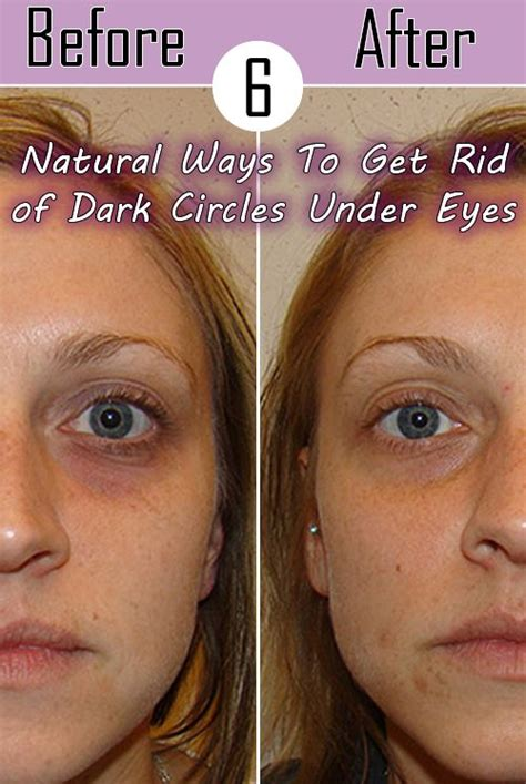Get Rid Of Eye Bags And Circles Podcast by Circles Bags And Style On