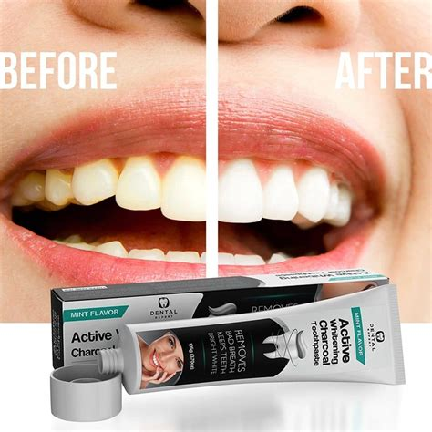 activated charcoal teeth whitening toothpaste review