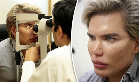 human ken doll before and after human ken doll rodrigo alves to have eyeball surgery to