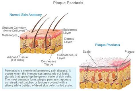plaque psoriasis specialist 183 laser dermatology