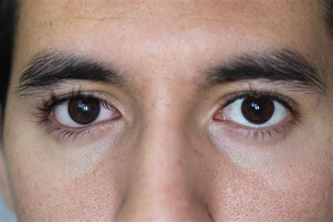 the eyes of the hydrophobic hydrophilic artificial eyes prosthetic eyes