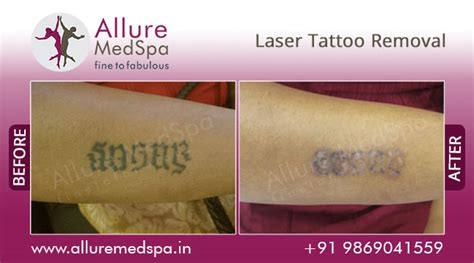 cost of laser tattoo removal in india laser removal information doctors cost