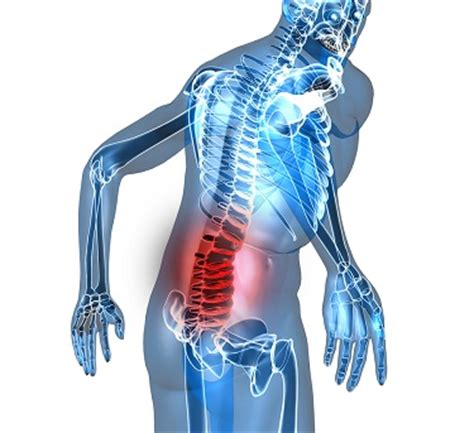 what's causing neck & lower back pain after a car accident