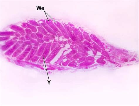 parasagittal section parasagittal section in the ovary of a control mature