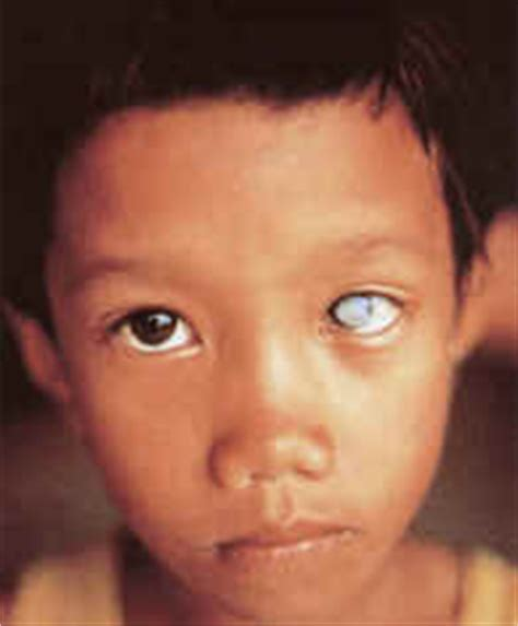 Symptoms Of Blindness In Infants why golden rice