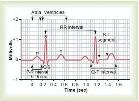 ecg pattern analysis for emotion detection the 25 best normal ecg ideas on pinterest nursing