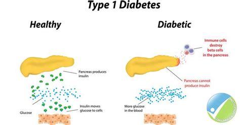 diabetes free shoes new treatment for diabetes type 1 type 1 diabetes uai research