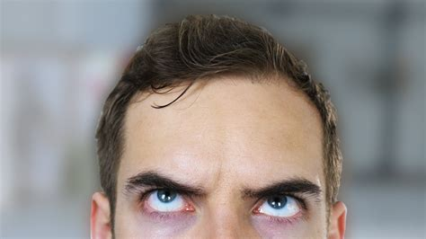 forehead getting smaller why fix my forehead yiay 333 youtube