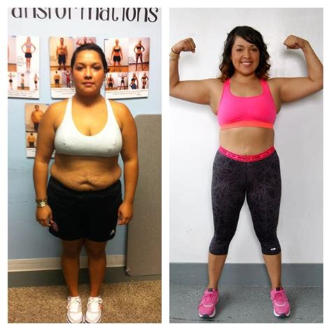 Weight Loss Surgical Centers Kansas City