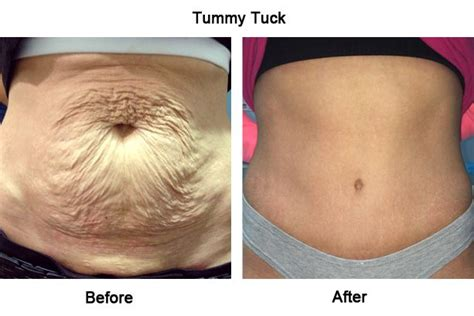can i have a tummy tuck after c section 25 best ideas about tummy tuck surgery on pinterest