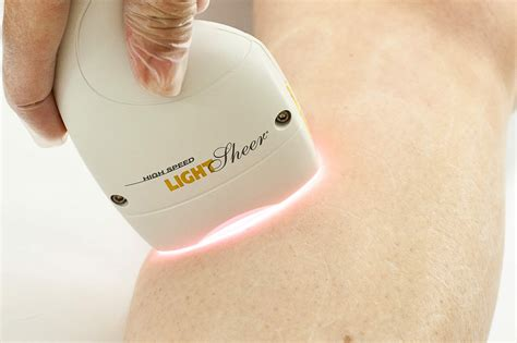 diode laser hair removal chicago diode laser hair removal chicago 28 images costco laser hair removal machinelaser hair