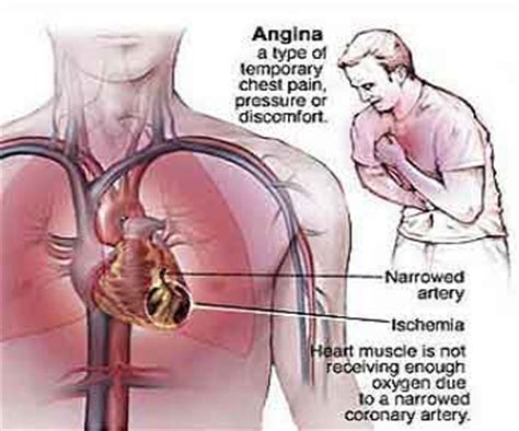 infarto del miocardio cause sintomi emergenza e cure angina causes location pictures symptoms and treatment