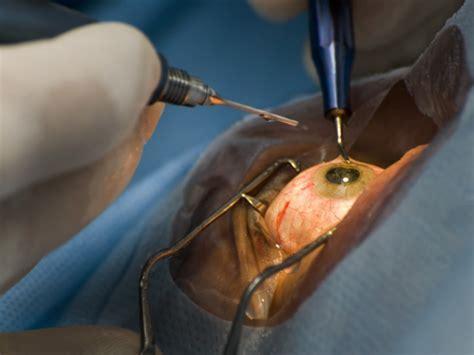 cataract surgery premium intraocular lenses growing in popularity