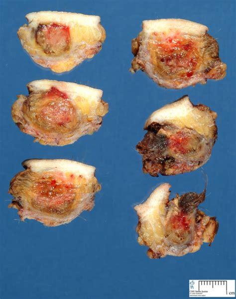 pilonidal cyst histology abcessed pilonidal sinus cyst humpath com human pathology