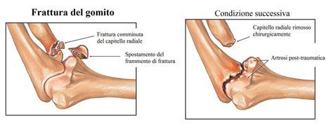 dolore gomito interno frattura gomito scomposta capitello radiale tempi