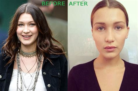 bella thorne before and after surgery bella hadid plastic surgery before and after