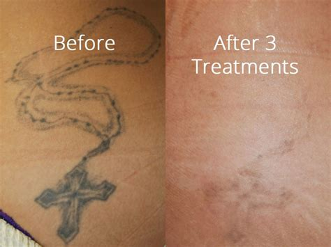 tattoo removal before and after salmon creek plastic surgery