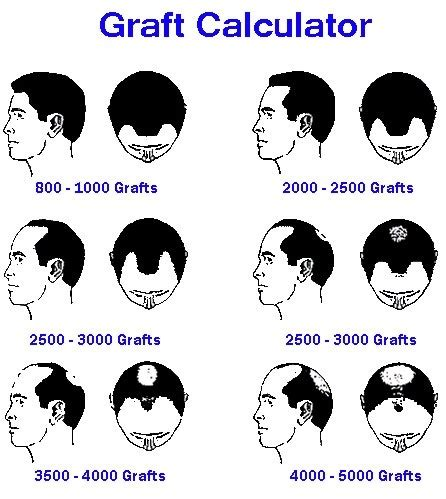 hair transplant calculation cost of hair transplant per graft in india om hair