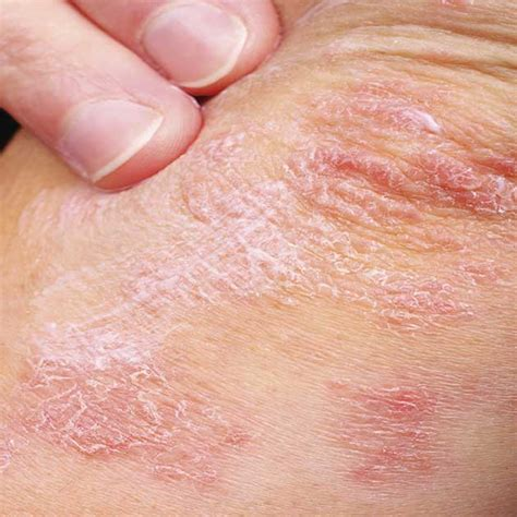 when a tiny patch of scaly skin is the first sign of dry itchy patches on skin diydry co