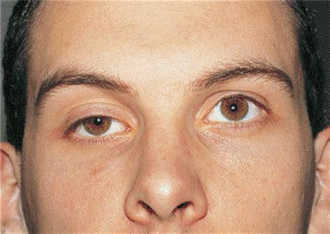 droopy eye what causes drooping eyelid enkivillage