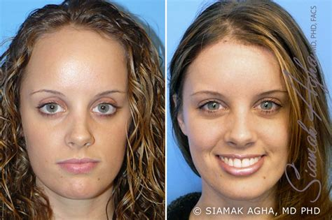 forehead surgery before and after face procedures before and after photo gallery newport