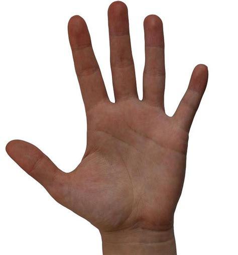 la mano izquierda de un cirujano quot convierte quot una mano izquierda en una mano derecha increible pero cierto