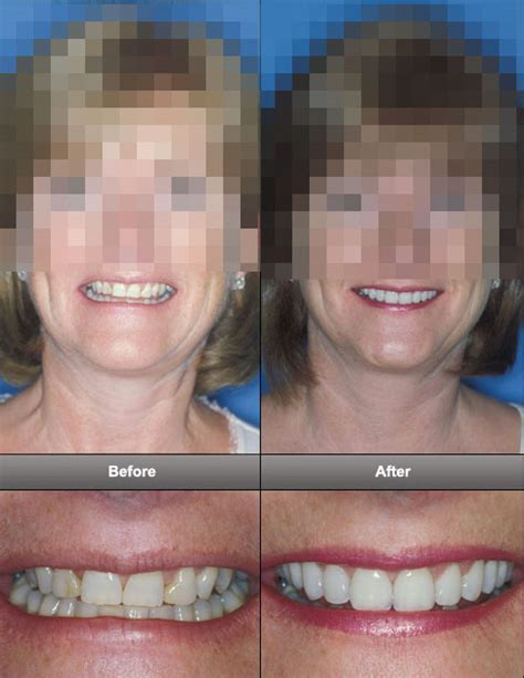 Next Facelift For Your Teeth 2 by Dental Facelift T Clinic Manchester Dentistry You Deserve
