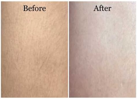full brazilian wax photos before and after full brazilian wax photos before and after www pixshark