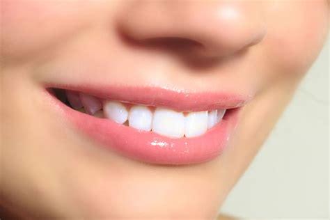 Jual Obat Pemutih Gigi Putih Bersih 7 cara memutihkan gigi secara alami gudang kesehatan