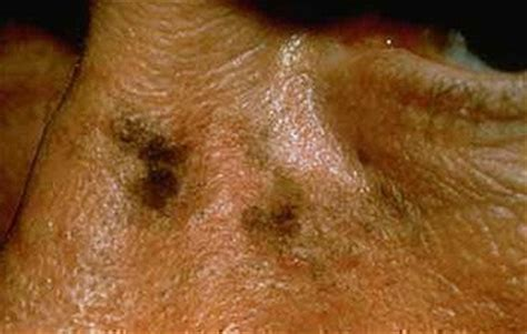 Light Spots On American by Actinic Keratosis American Academy Of Dermatology
