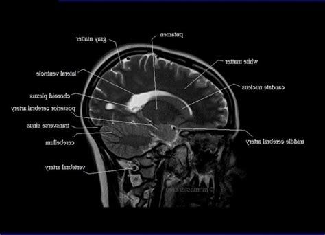 Similiar Brain MRI Anatomy Clinoid Keywords